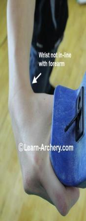 wrist out of alignment with the forearm