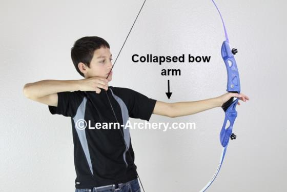 Collapsed bow-arm